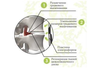 Лечение карипазимом