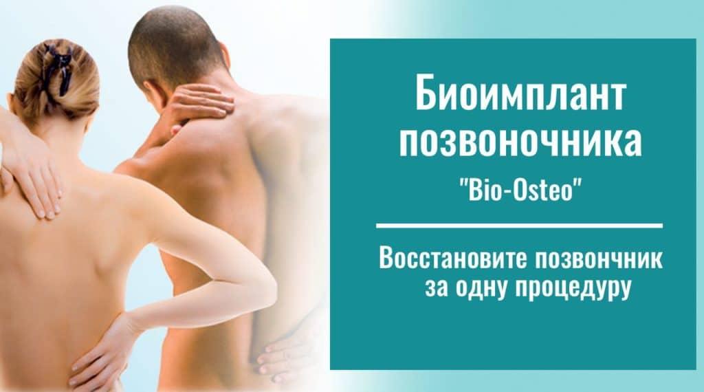 Биоимпланта позвоночника «Bio- Osteo»