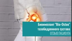 Биоимплант «Bio-Osteo» тазобедренного сустава отзывы пациентов