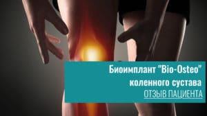 Биоимплант «Bio-Osteo» коленного суставов отзыв пациента