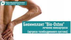"Биоимплант ""Bio-Osteo"". Лечение коксартроза (артроза тазобедренного сустава)"