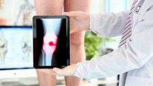 Артроз суставов: степени заболевания и в чем разница