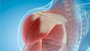 Рекомендации врачей при плечелопаточном периартрите