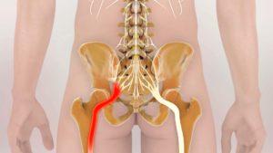 Защемление (ущемление) нерва в пояснице
