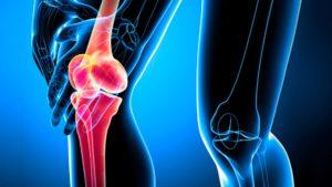 Внимание, вылечить артроз коленного сустава за один приём стало возможным.