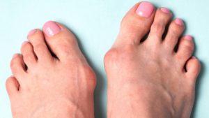 Здоровье стопы не купишь. Деформация большого пальца.