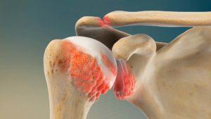 Артроз плечевого сустава : Причины, симптомы, лечение